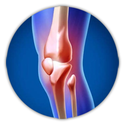Best Joint Replacement Surgeon in Hyderabad