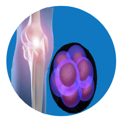 Knee - Joint