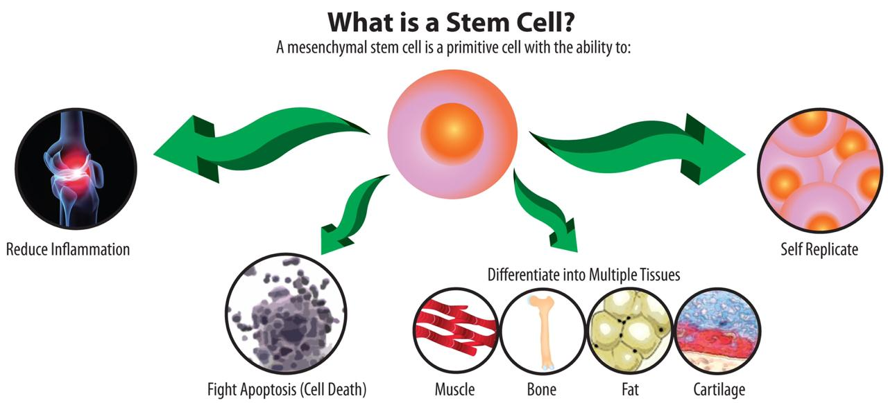 stem cell therapy for knee in hyderabad